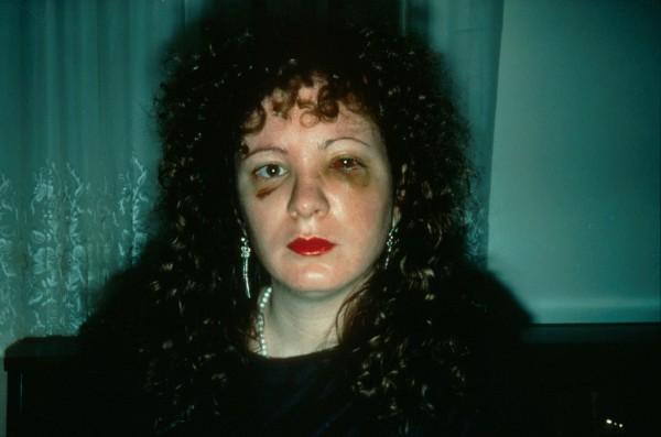 Nan Goldin autoretrato